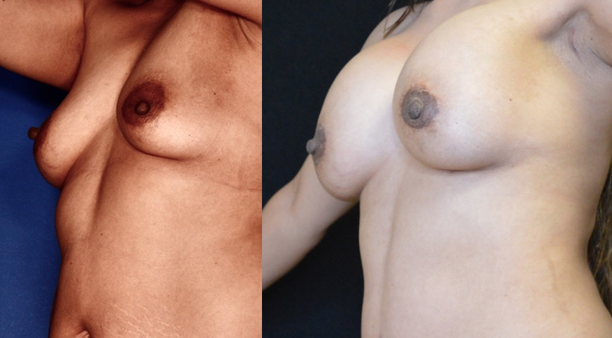 Breast Augment with lift Tempe az