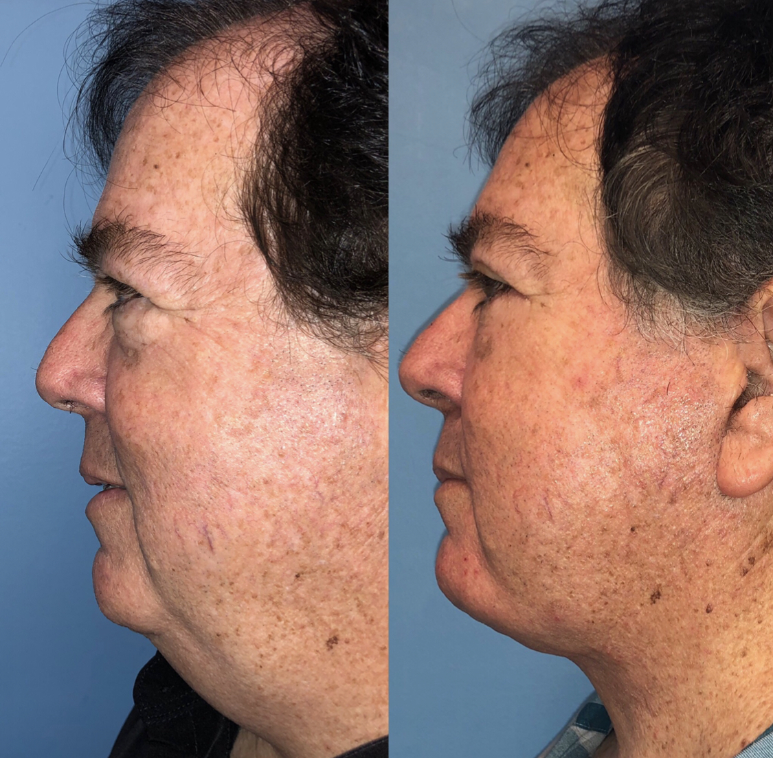 Male Facelift Before and After Scottsdale AZ